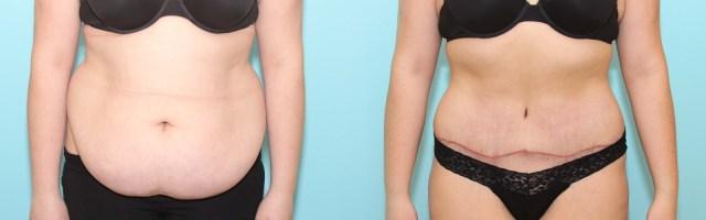 21 year old Tummy Tuck (Abdominoplasty)