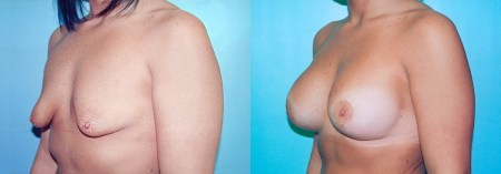 Before & After Tubular Breast Correction (Case 1b) - DeLuca Plastic Surgery