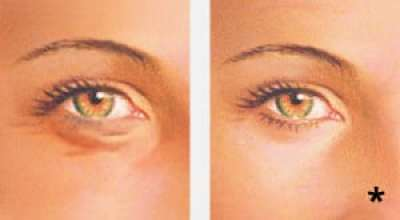 Before and after lower eyelid blepharoplasty - eyelid surgery albany ny