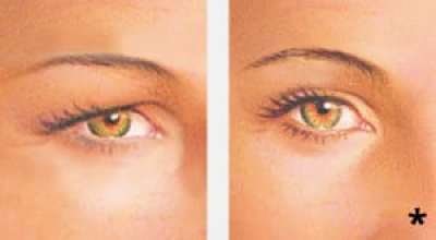 Before & after upper eyelid lift surgery (blepharoplasty) - eyelid surgery albany ny