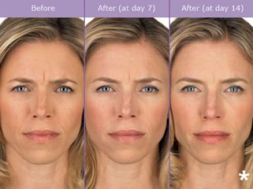 Botox Before And After Image - DeLuca Plastic Surgery
