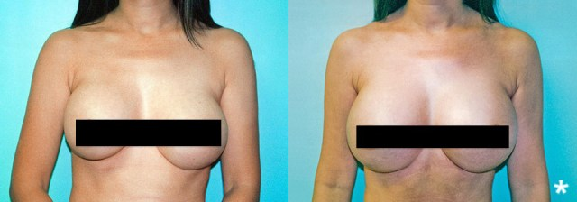 Breast Implants Asymmetry Image - DeLuca Plastic Surgery