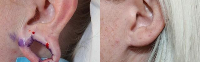 37 year old Closure of Gauge Earring Holes
