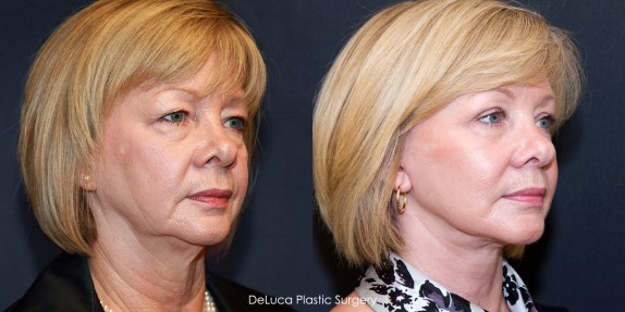 Before & after facelift on face with sunken cheeks and jowls