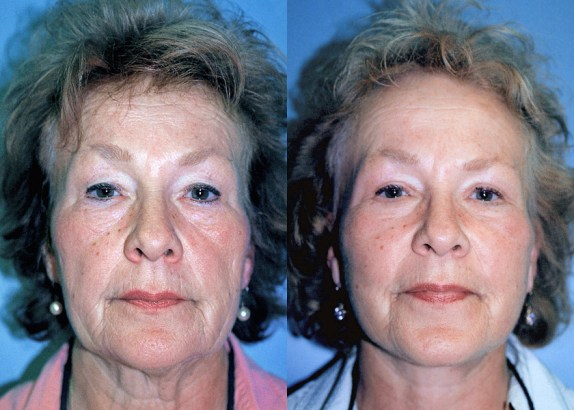 Before & After SMAS Facelift - note how the saggy tissue has been moved from the jowls to the upper and mid face.