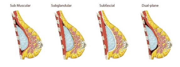 Breast implant position options - submuscular vs subglandular vs subfascial vs dual plane