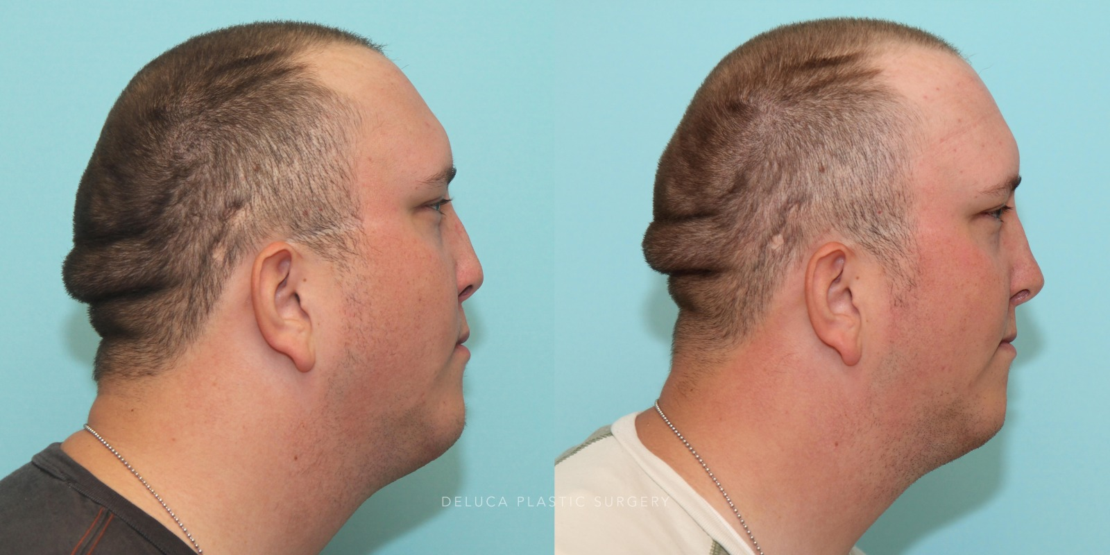 24 year old Reconstructive Rhinoplasty Using Rib Graft