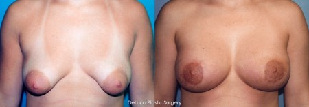 Tubular Breast Deformity - Before & After Photo 3a