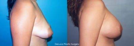 Tubular Breast Deformity - Before & After Photo 3c