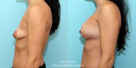 Tubular breast augmentation correction, before & after 3