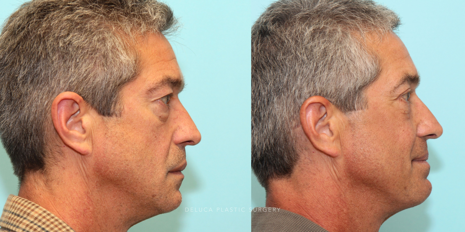 55 year old Upper and Lower Eyelid Blepharoplasty (Eyelid Lift) with Fat Redraping and Mid-face Implants