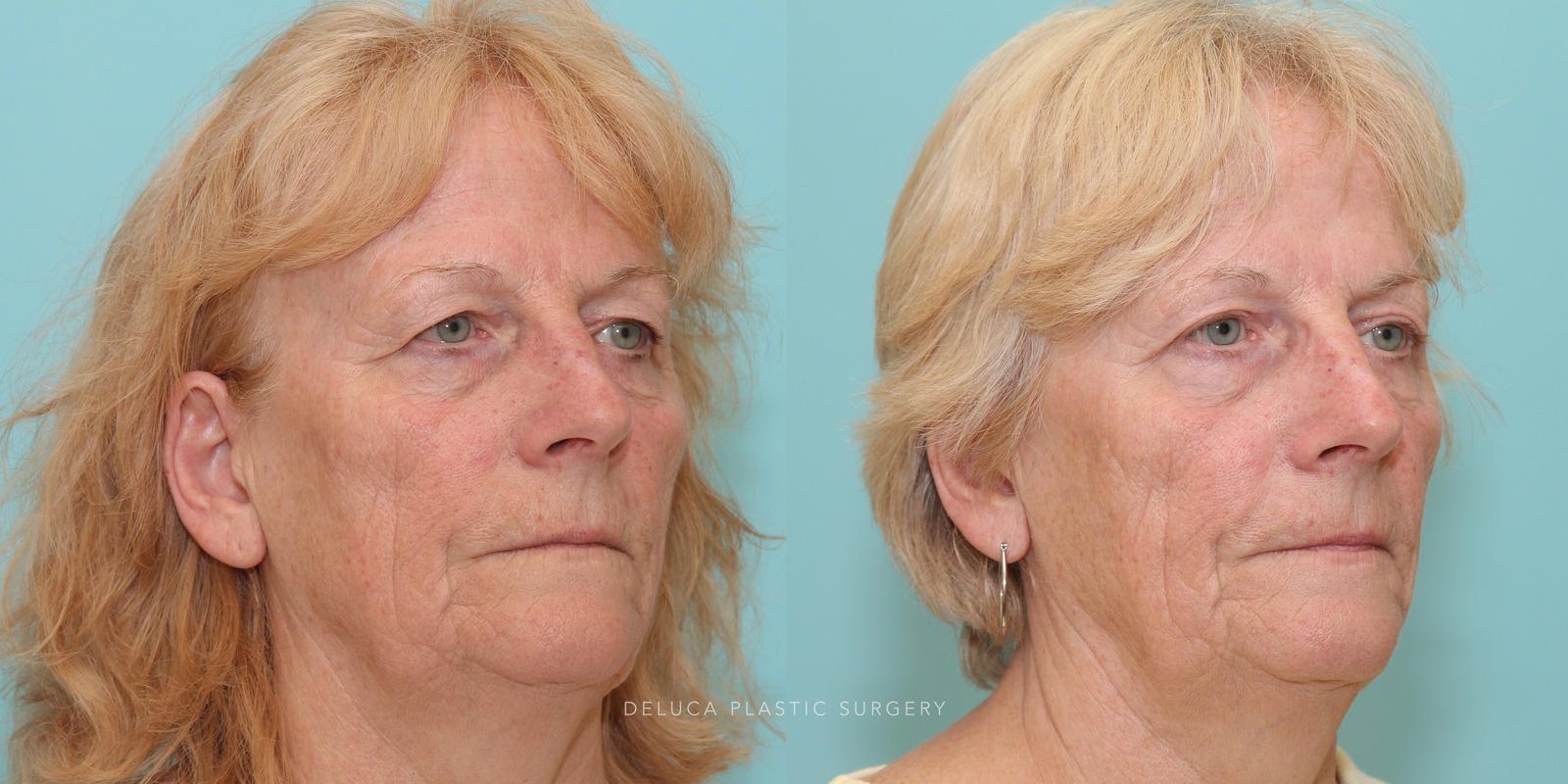 69 year old Upper Eyelid Blepharoplasty