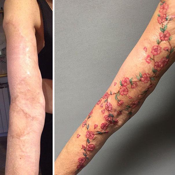 scars tattoos cover up 19 - 50 Incríveis tatuagens de encobrimento de cicatrizes