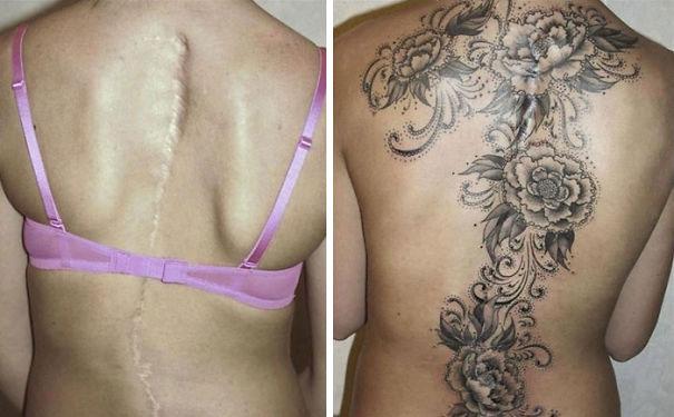 scars tattoos cover up 21 - 50 Incríveis tatuagens de encobrimento de cicatrizes