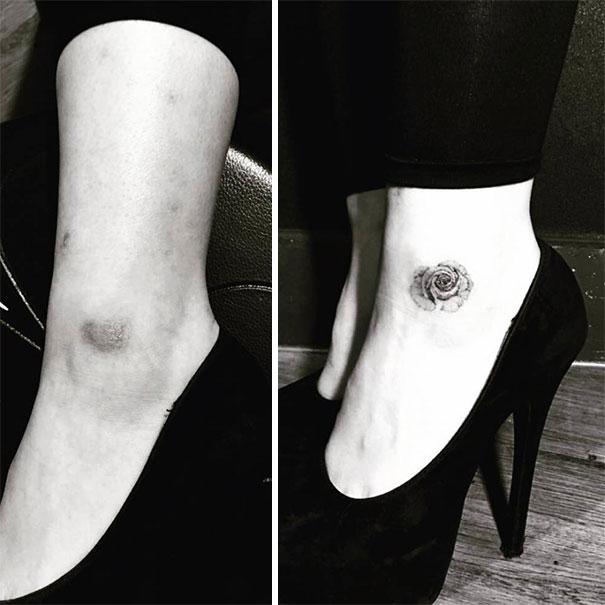 scars tattoos cover up 24 - 50 Incríveis tatuagens de encobrimento de cicatrizes