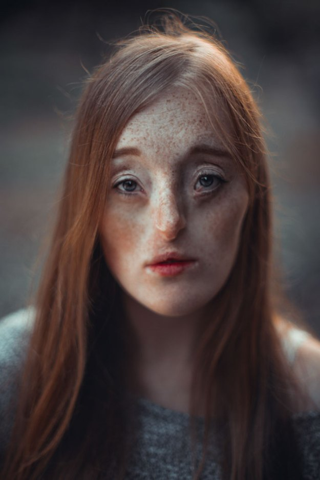 5ae9635f65247-Sensual-Trueness-8-5a8447ffcf4a9__700 26-Year-Old Born With Extremely Rare Facial Condition Is Now A Model, And She's Breaking Beauty Standards Inspiration Photography Random