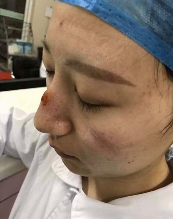 5e41144db58f5 chinese nurses face masks corona virus 5e3d58124abdb  700 - Coronavírus: Enfermeiras chinesas chamadas de heroínas ficam com feridas pelas máscaras