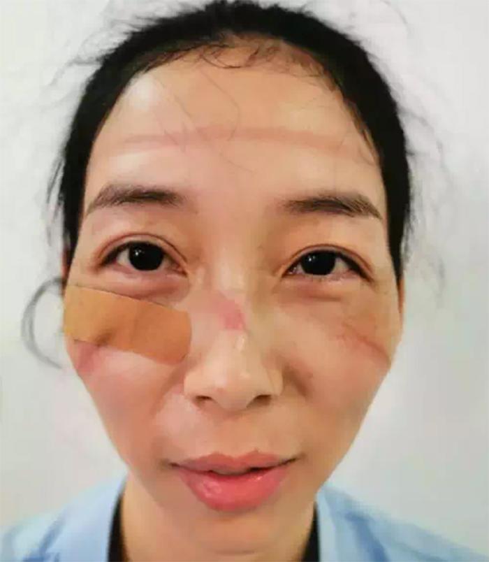 5e41144f29ad5 chinese nurses face masks corona virus 4 5e3d2fc6d2fdc  700 - Coronavírus: Enfermeiras chinesas chamadas de heroínas ficam com feridas pelas máscaras