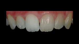 Removing light reflection from teeth with the polar_eyes filter lets color come through