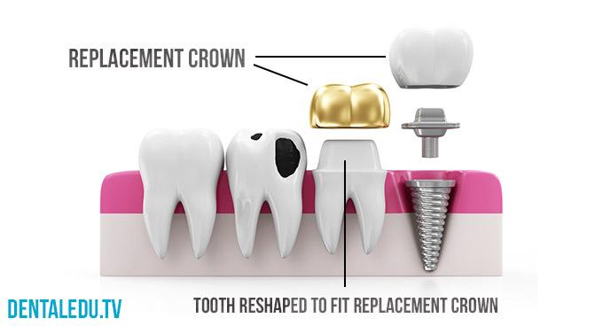 Mahkota Gigi Dan Rekonstruksi Mulut- Global Estetik Dental Care