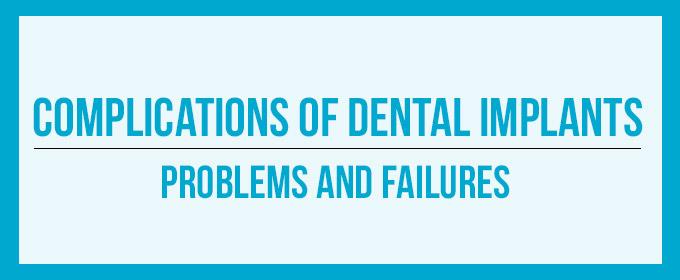 Best Dental Implants