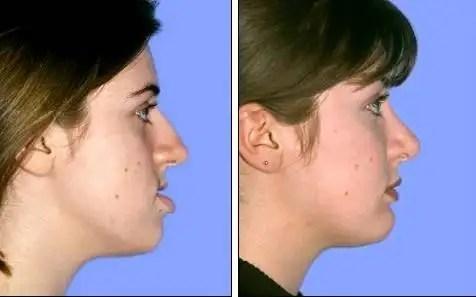 Maxillofacial surgery correction
