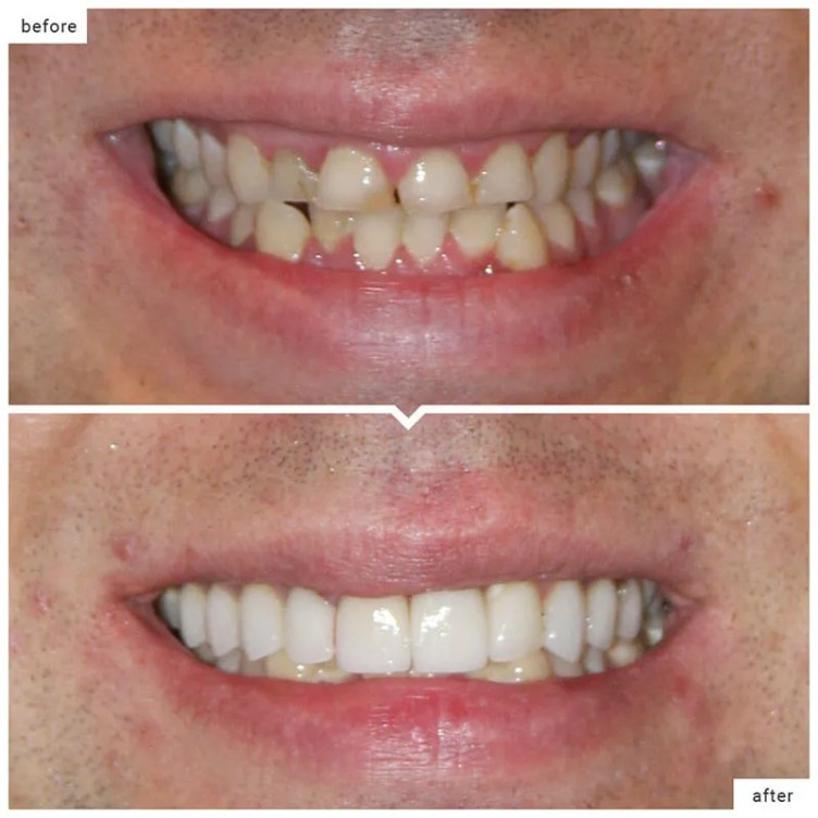 dental-crowns-cost-abroad-colombia