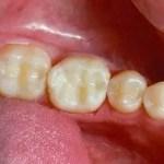 Dental fillings Medellin dentist