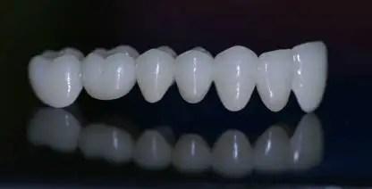 Dental bridge zirconia