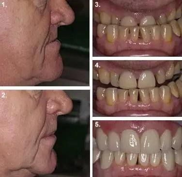 Dental crowns before after Colombia Medellín