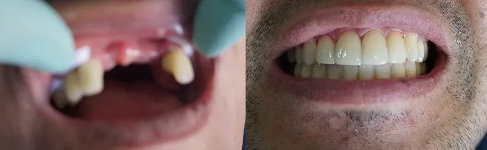 Bone graft surgery and Implants Medellin Colombia