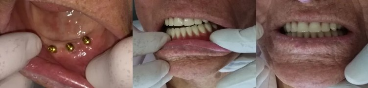 Dentures over  implants before after