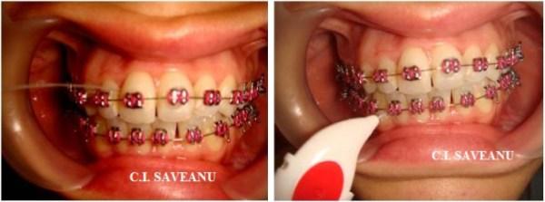 Figura 4 - Aplicarea firului dentar superfloss si a periutelor interdentare la un pacient purtător de aparat ortodontic fix (2).