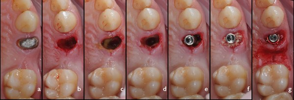 Succesiunea etapelor de inserare post-extracțională a implantului Ankylos A11 pe poziția premolarului 14: a. status preoperator; b. alveola postextracțională după extracția atraumatică a dintelui 14; c. chiuretajul și decontaminarea alveolei post-extracționale cu Doxiciclină; d. prepararea osteotomiei pe traseul alveolei palatinale; e. inserarea implantului la distanță de corticala vestibulară; f. inserarea materialului de augmentare în spațiul peri-implantar; g. înșurubarea bontului Balance Base Narrow drept GH 3.0.