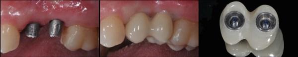 Lipirea componentei estetice pe capele de titan în cavitatea orală