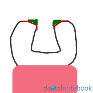 Bad cavosurface angle, leaving thin amalgam (green).