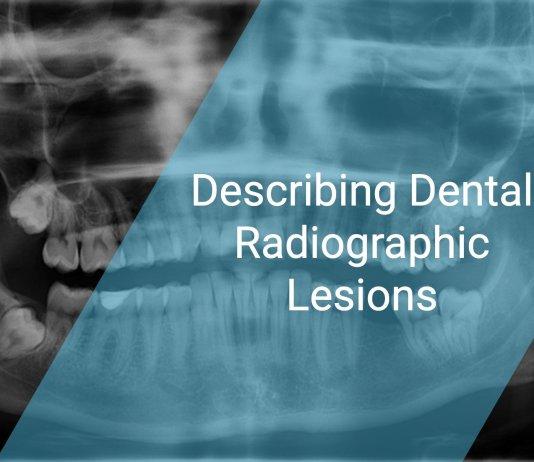 Describing Dental Radiographic Lesions