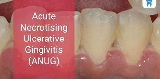 Acute Necrotising Ulcerative Gingivitis (ANUG)