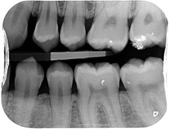 Dental Radiograph - Left bitewing