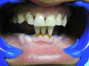 Nedostatak većine zuba u donjoj vilici, ugrađeno ukupno 8 implantata