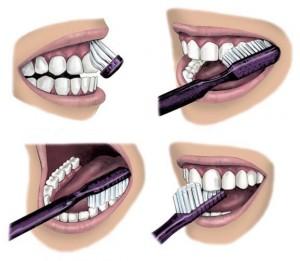 Dental_BrushingTeeth