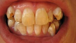 Orange Teeth with Extrinsic Dental Stains