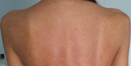 psoriasis-skin-disease