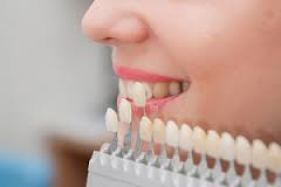 teinte de facette dentaire