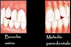 Maladie Parodontale Tout Savoir Sur La Parodontite