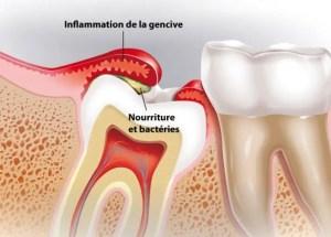 """Résultat de recherche d'images pour """"complication d'evolution d'une dent"""""""