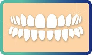 הלבנת שיניים במרפאת דנטין ביישוב נילי