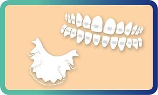 יישור שיניים לילדים ולמבוגרים