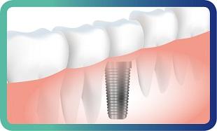 השתלת שיניים במרפאת דנטין ביישוב נילי