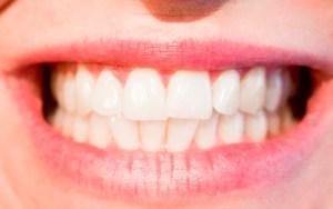 Apretando los dientes